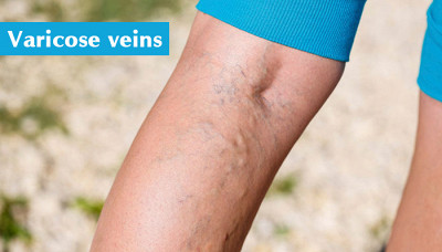 What are Varicose Veins? The Complete Guide