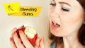 What Causes Bleeding Gums and How to Treat It