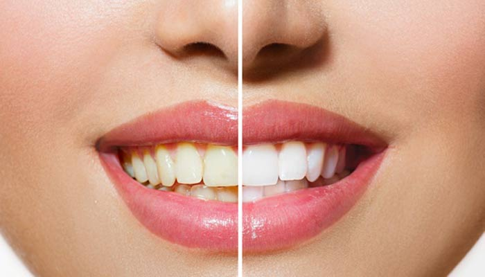 Dull teeth? Let Apple cider vinegar help you with that