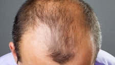 Alopecia & Bald Patches